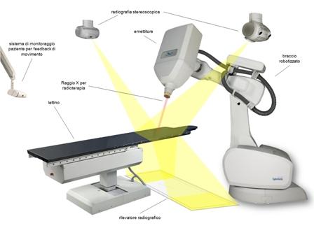 effetti collaterali del cancro alla prostata radiazioni cyberknife